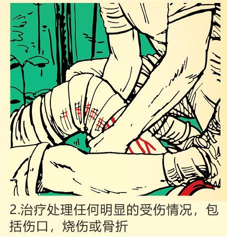 治疗处理任何明显的受伤情况,包括伤口,烧伤或骨折