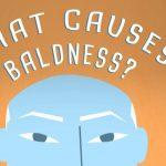 什么原因导致秃头